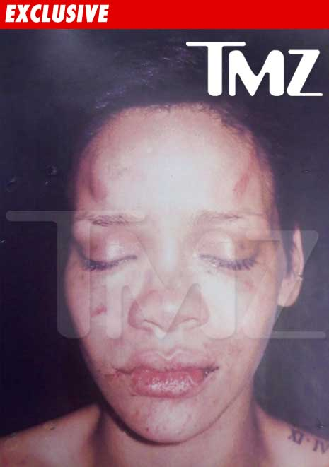 0219_rihanna_photo_beating